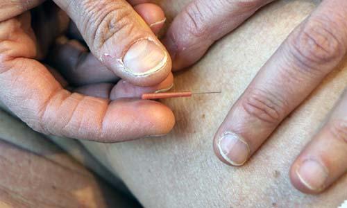 akupunktur på amager